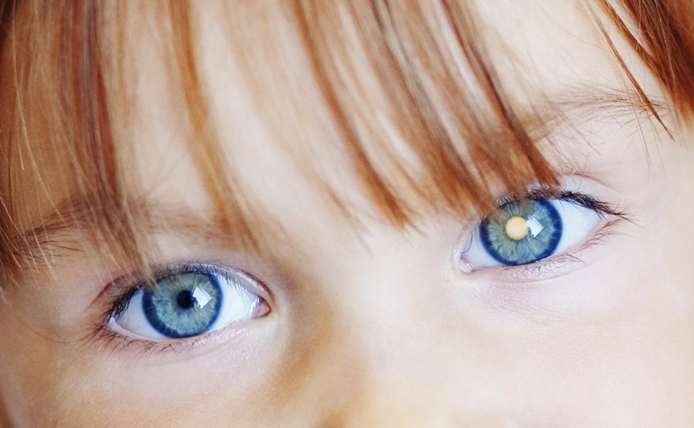 See the light - early detection of eye cancer in children